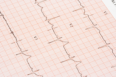 Heart Disease Could Cost U.S. $1 Trillion Per Year by 2035: Report
